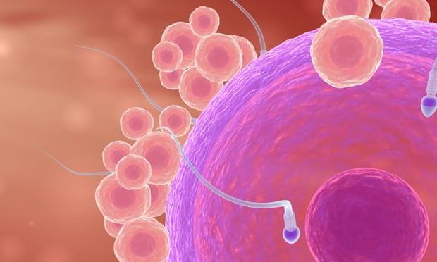 Damaged sperm could be to blame for repeated miscarriages